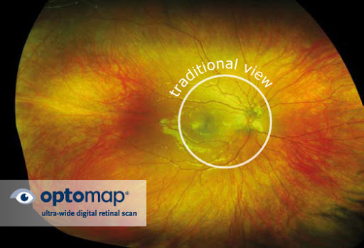 Optomap eye infographic